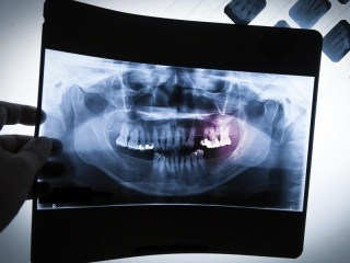 Hai detto mal di denti?