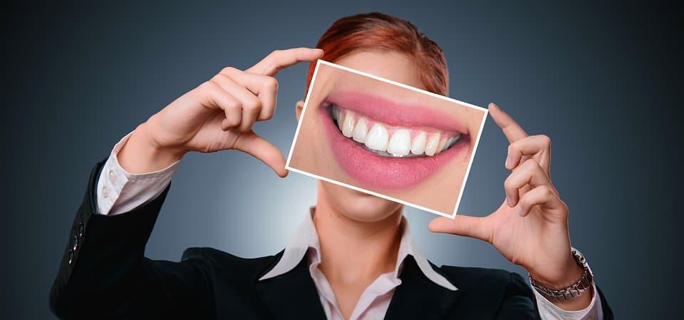L'apparecchio per i denti trasparente